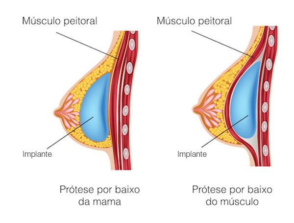 Implante de prótese mamária