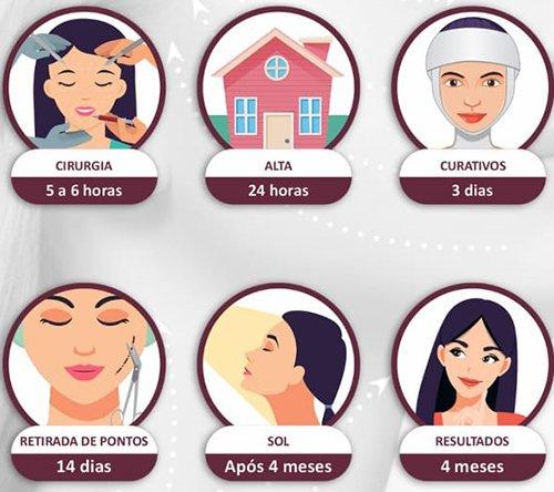 Prazos de retorno às principais atividades após o lifting facial