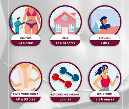 Prazos de retorno às principais atividades após lipoaspiração