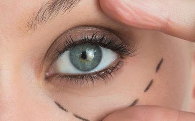 Blefaroplastia Cirurgia plástica das pálpebras que levanta o olhar