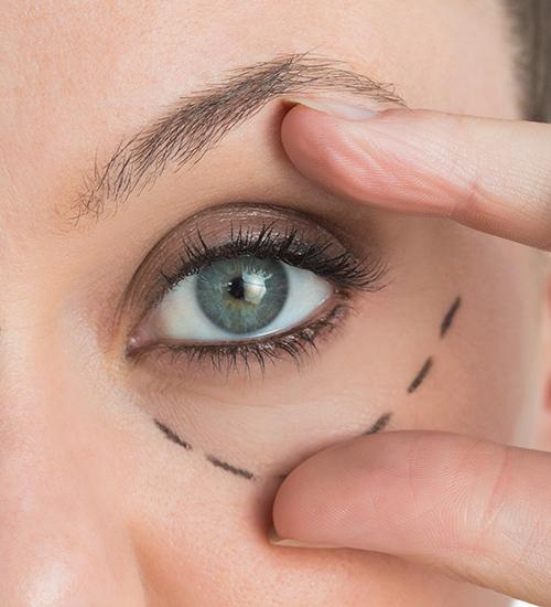 cirurgia plástica das pálpebras que levanta o olhar